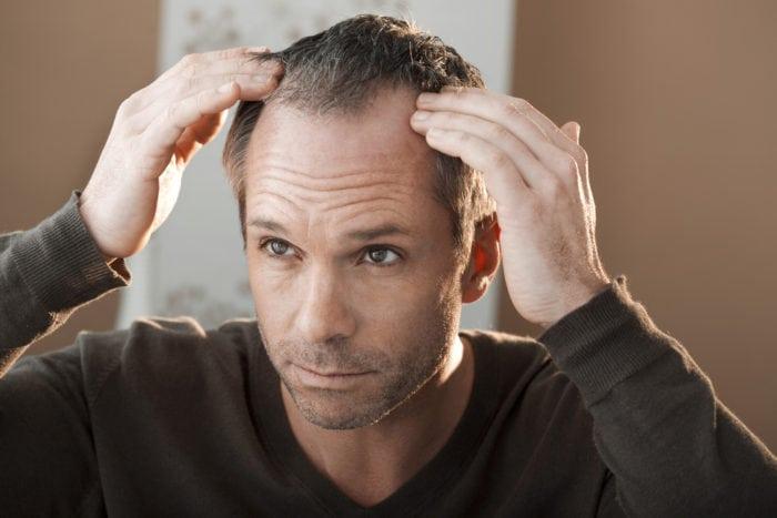 Entradas cabelo masculino